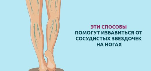 сосудистые звездочки на ногах