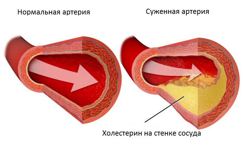 как определить холестерин